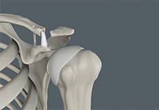 Acromioclavicular (AC) Joint Reconstruction